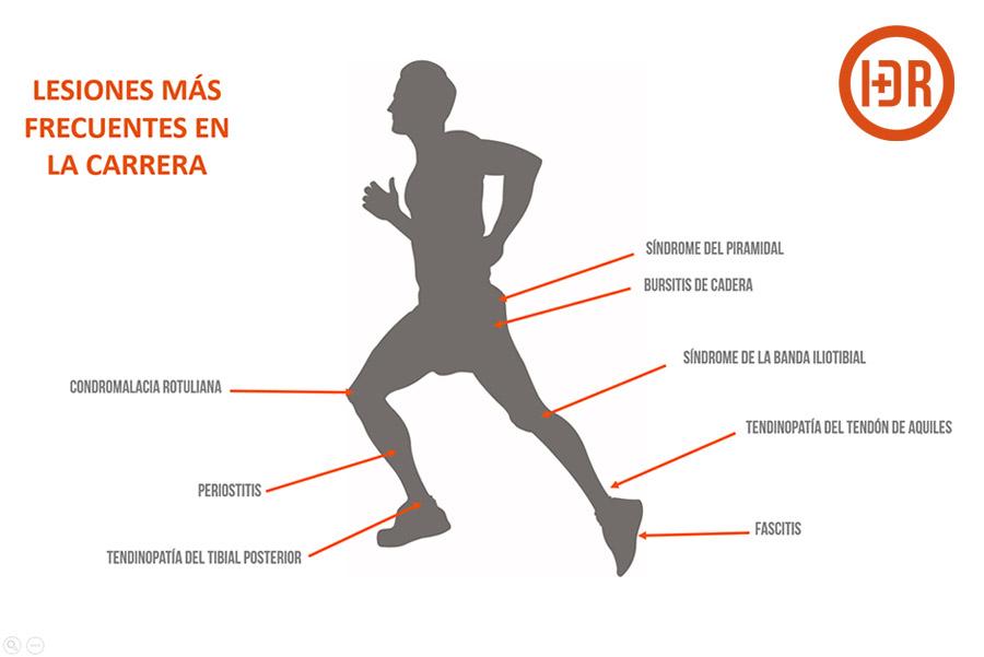 Lesiones en Running. ¿Cómo afrontarlas?